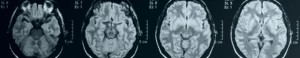 An MRI scan of someone with a brain injury